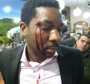 El actor, Marius Makon, muestra las heridas tras la agresión sufrida en un bar de Madrid