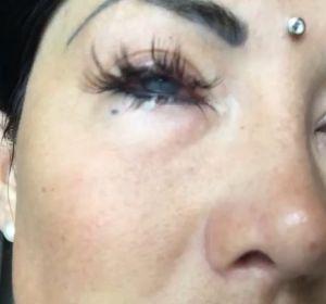 Nadinne Bruna tras la operación para cambiar su color de ojos