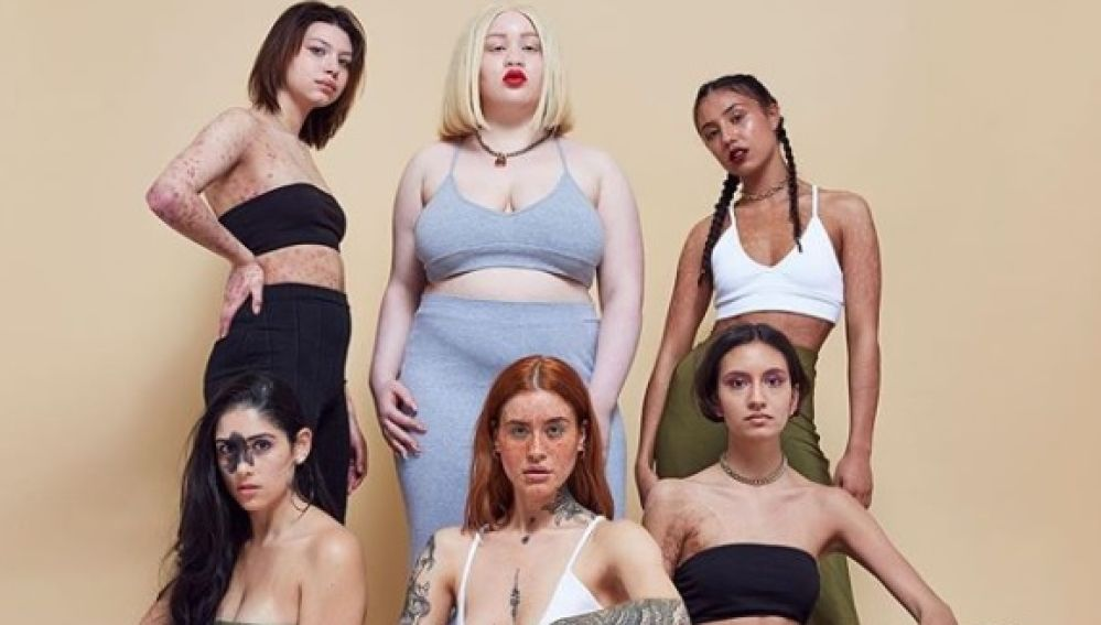 """La campaña de moda que resalta las """"imperfecciones"""" de la piel: #InYourOwnSkin"""