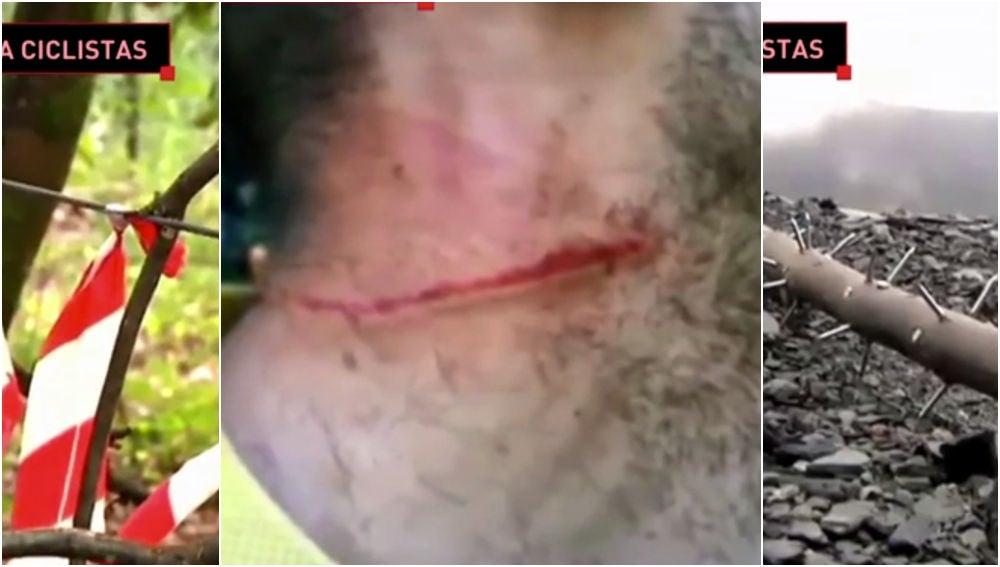 Las peligrosas trampas contra ciclistas
