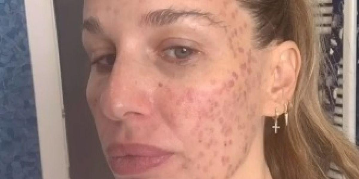 Imagen de Carola Baleztena con la cara quemada