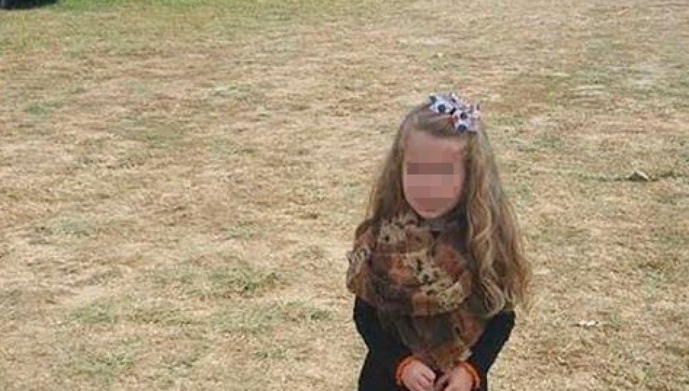 La imagen de una niña que se ha hecho viral por sus piernas