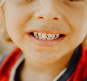 Primer plano de los dientes de un niño