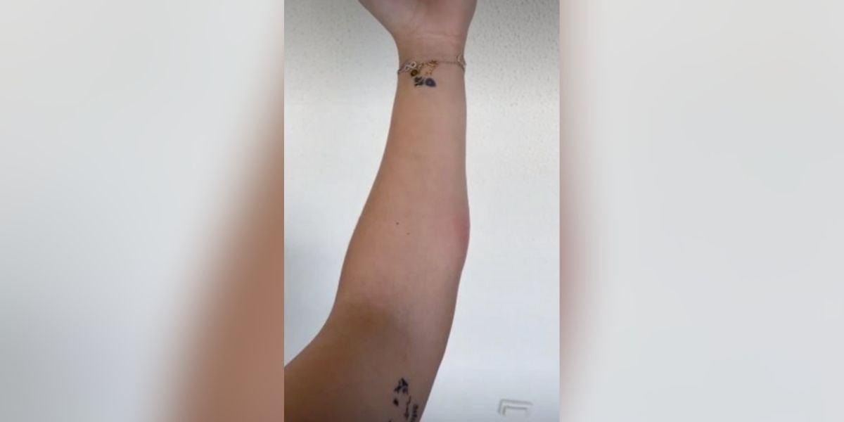 La picadura de Cristina Pedroche