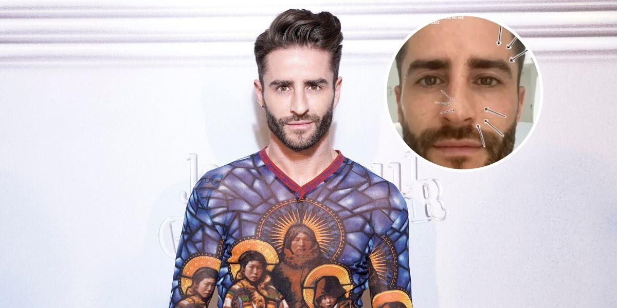 Pelayo Díaz muestra sus manchas en la piel