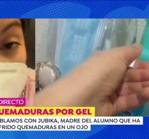 """La madre del niño de 3 años que ha sufrido quemaduras por gel en Lalín: """"Tiene la membrana del ojo quemada y una úlcera"""""""