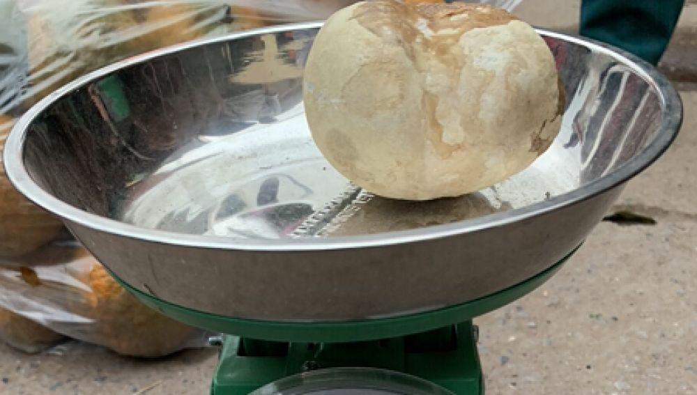 Cálculo de 400 gramos extraído de una mujer vietnamita
